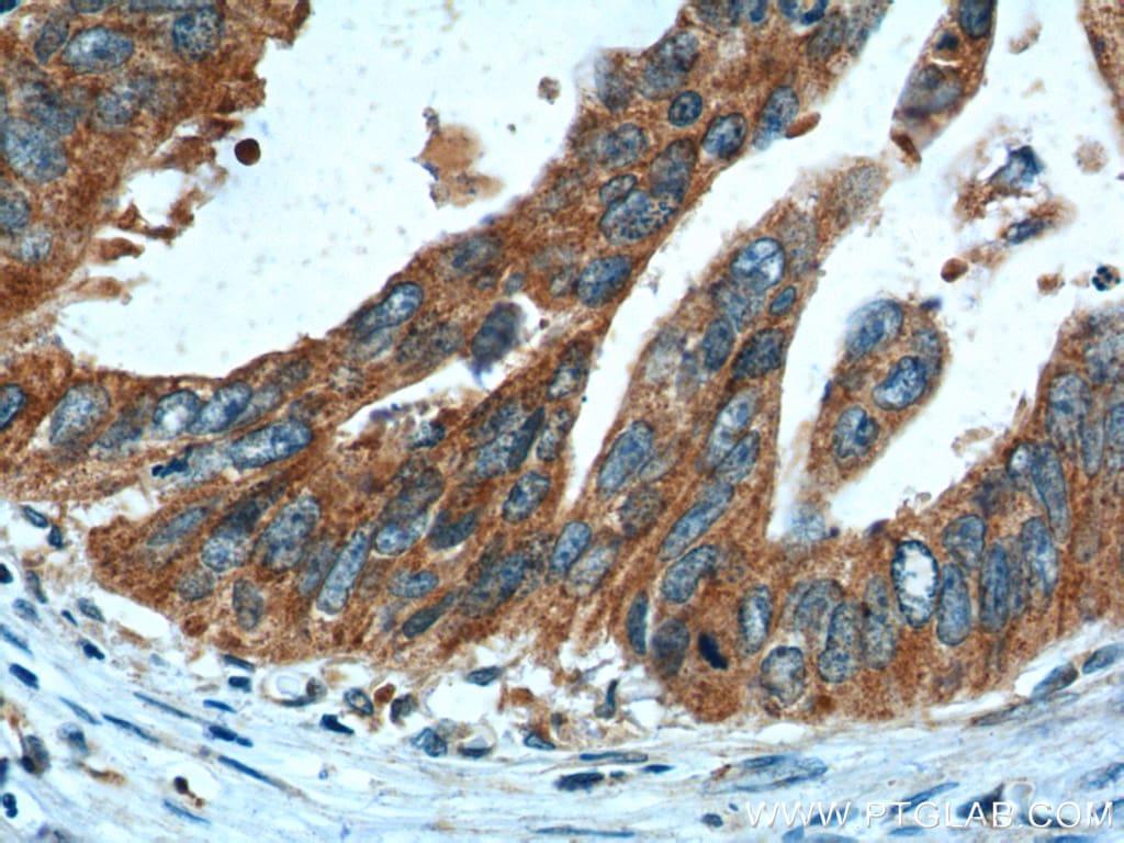 CBS Antibody in Immunohistochemistry (Paraffin) (IHC (P))