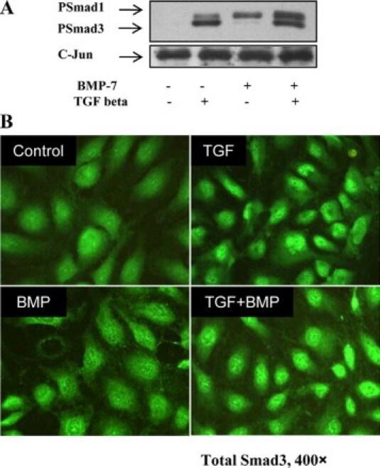 SMAD3 Antibody in Western Blot (WB)
