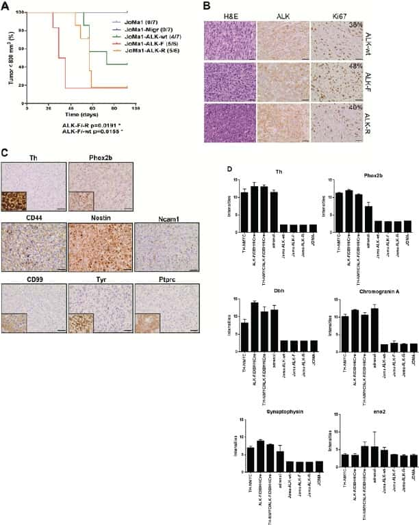 The artichoke leaf extract inhibits in vivo mesothelioma