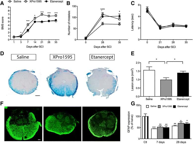 GFAP Antibody in Immunohistochemistry (IHC)
