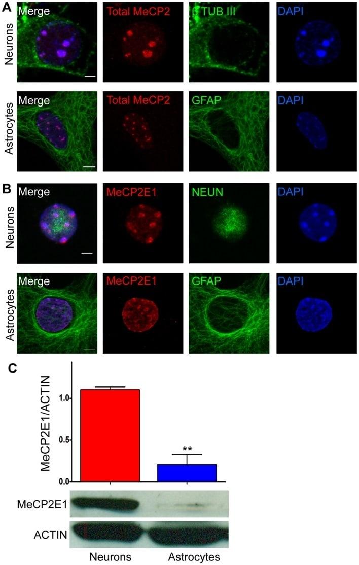 GFAP Antibody in Immunocytochemistry (ICC/IF)