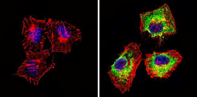 Actin Antibody in Immunocytochemistry (ICC/IF)