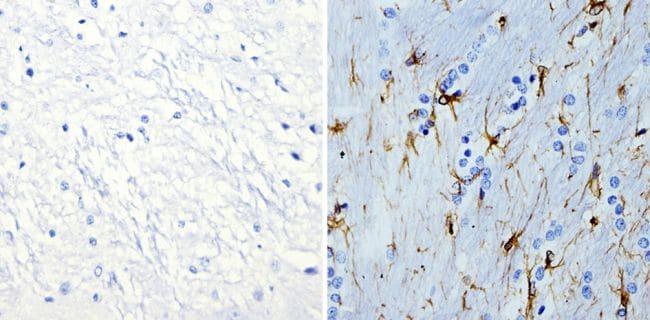 GFAP Antibody in Immunohistochemistry (Paraffin) (IHC (P))