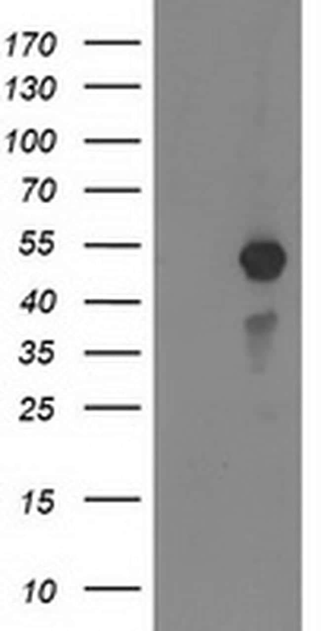 MEF2C Antibody in Western Blot (WB)