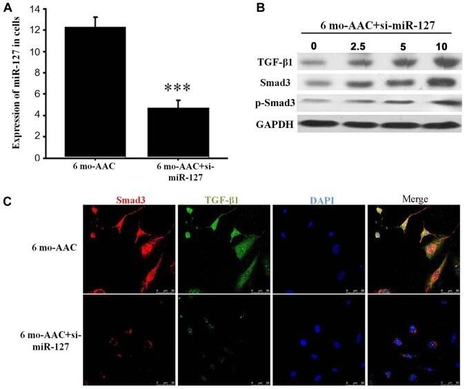 SMAD3 Antibody in Immunocytochemistry (ICC/IF)